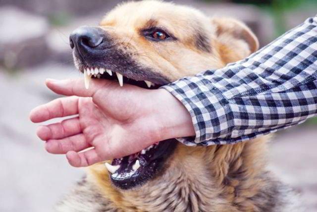 Chó cắn có phải bị nhiễm bệnh dại không? | Vinmec